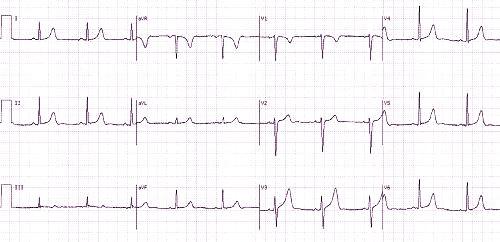 ar įmanoma nustatyti hipertenziją pagal ekg