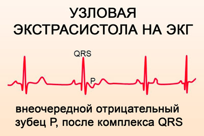 jei širdies kolitas su hipertenzija