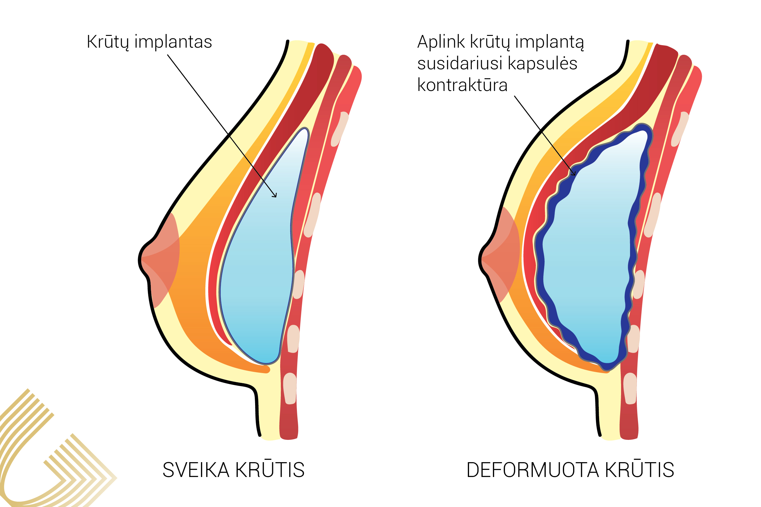 implantai ir hipertenzija