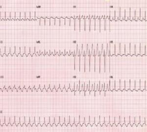 širdies plakimas nėštumo metu moterų sveikata