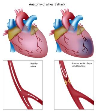 Amerikos širdies asociacijos žygių nauda sveikatai)