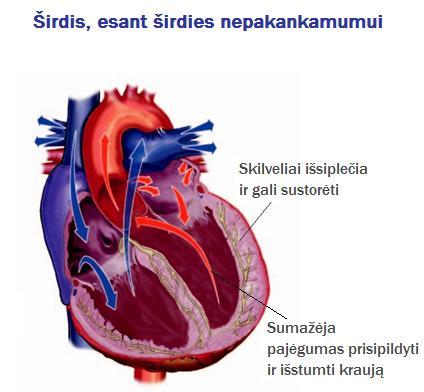 raumenų hipertenzijos sindromas vaikams