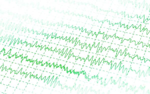 širdies kardiograma su hipertenzija)