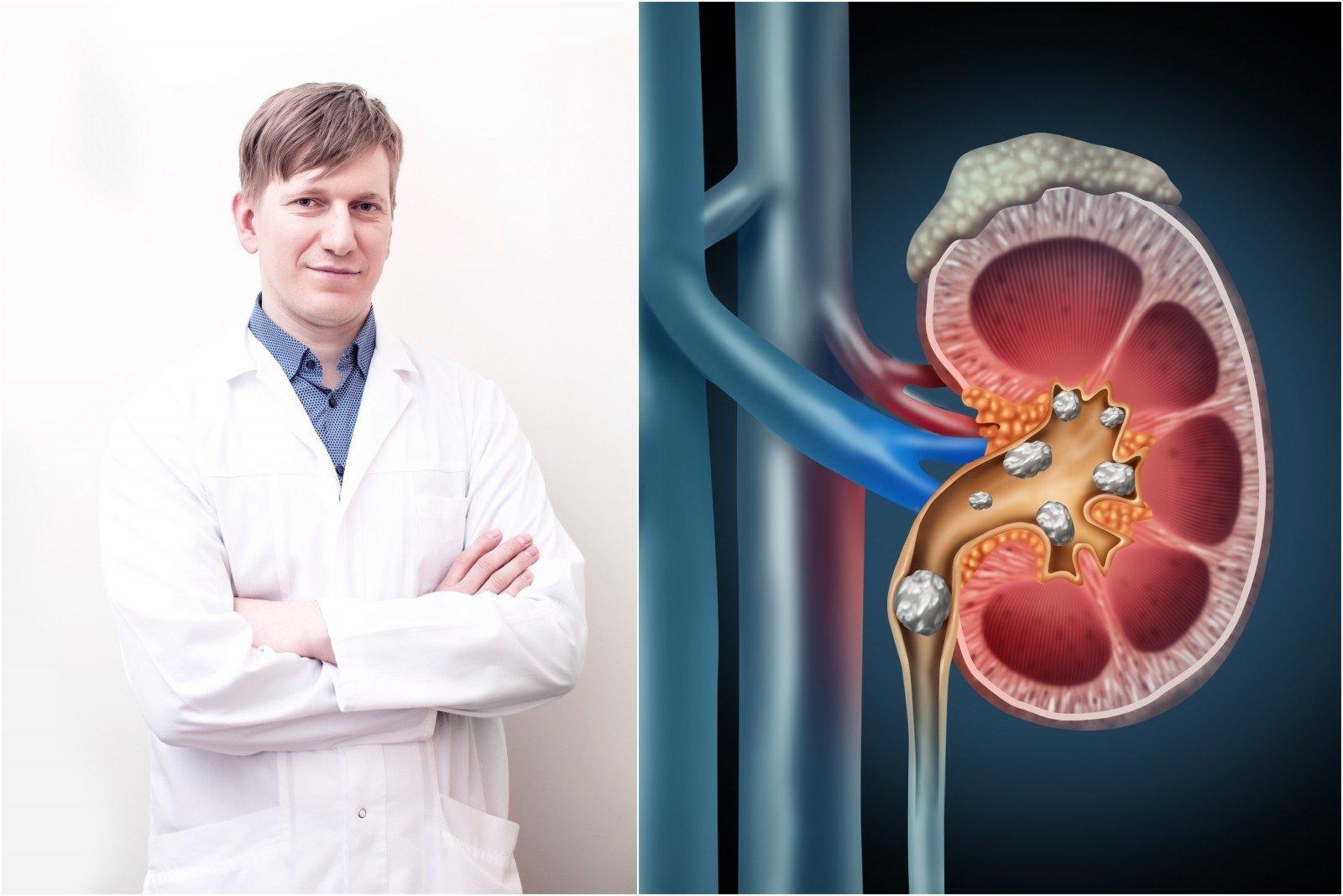 hipertenzija ir žmogaus sąmonė mialgija su hipertenzija