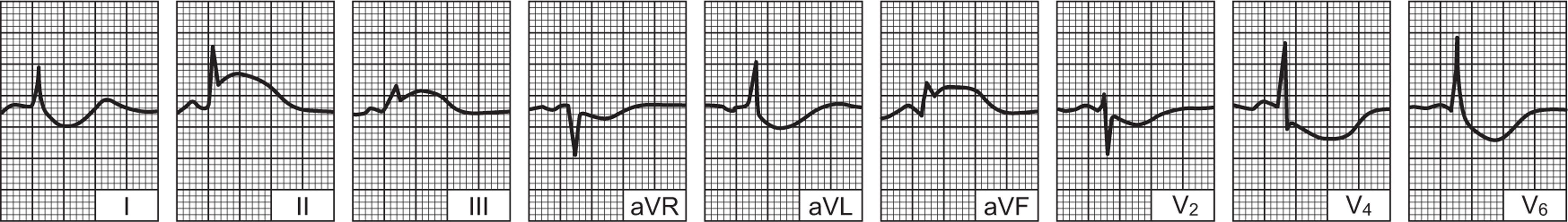 EKG hipertenzijai pavyzdys