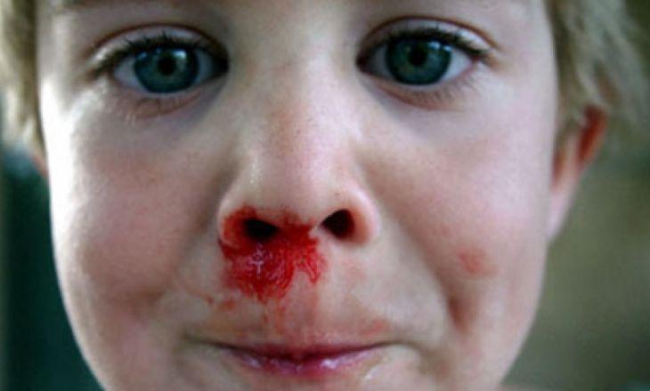 kraujavimas iš nosies dėl hipertenzijos pirmosios pagalbos vaistų
