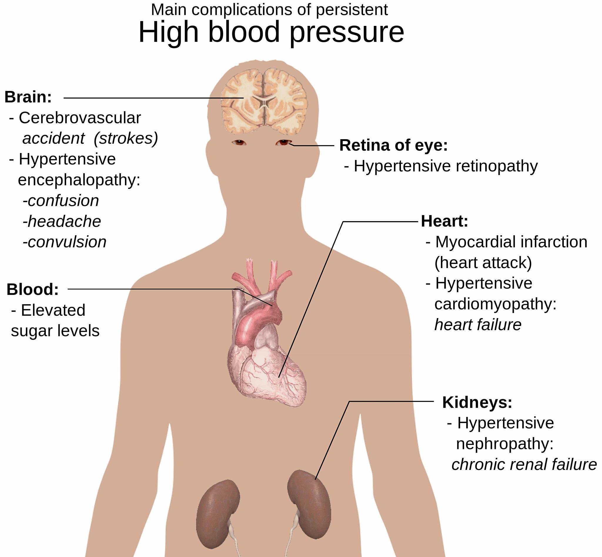 kokį geriausia gerti raudoną vyną širdies sveikatai hipertenzija ir hipotenzija, kuri yra blogesnė
