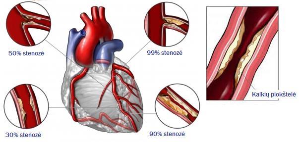 koronarinė širdies liga ir dantų sveikata hipertenzijos atsakymo testas
