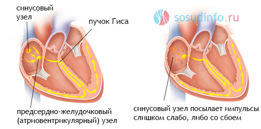 vaistų nuo hipertenzijos bradikardijos gydymas)