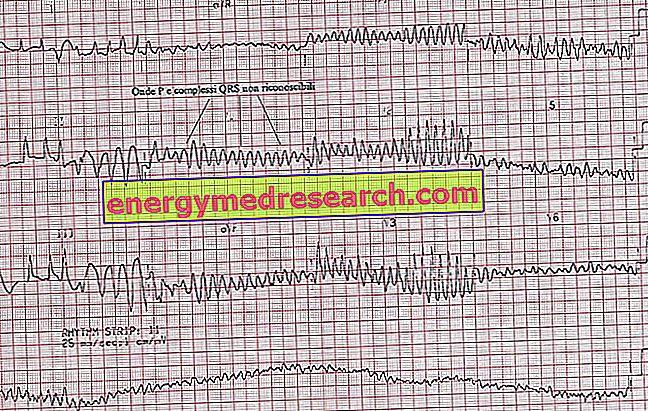 kurso hipertenzija vaikams ortosifono hipertenzija