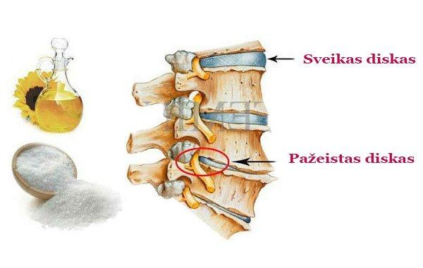 hipertenzija su alternatyviu osteochondrozės gydymu)