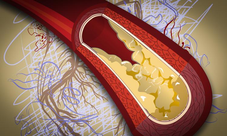 ar vartoti statinus nuo hipertenzijos
