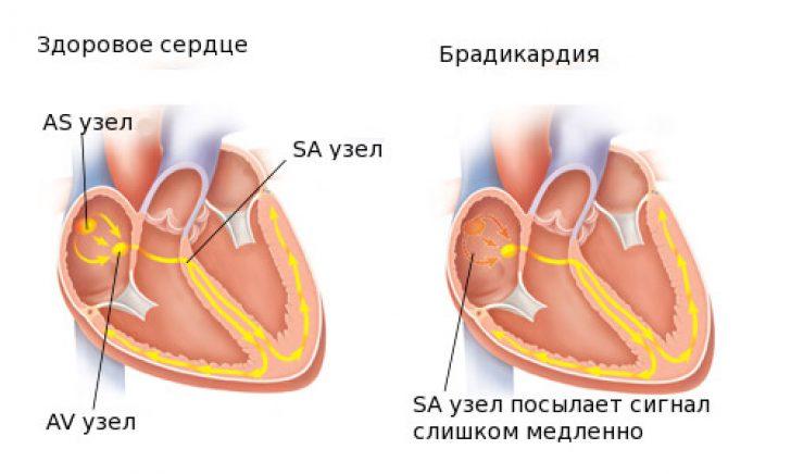vaistai nuo hipertenzijos su bradikardija