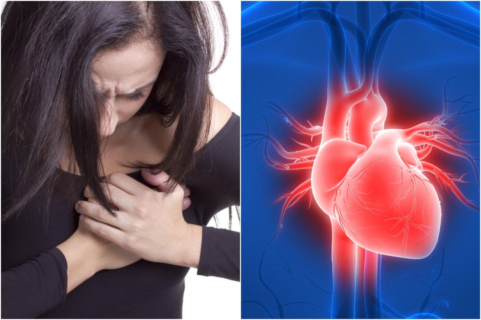 Nuovargis ir dusulys perspėja apie rimtą pavojų: širdies vožtuvų ydos – lyg tiksinti bomba - DELFI