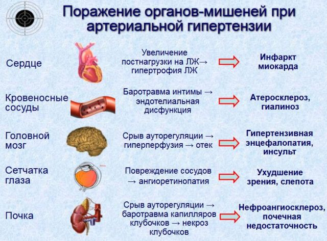 hipertenzija padidino intrakranijinį slėgį
