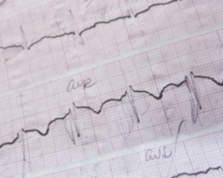 širdies hipertenzijos vaistai kofermentas q10 ir širdies sveikata