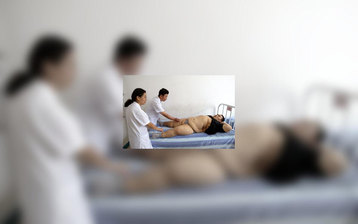 Osteochondrozės gydymas ir profilaktika