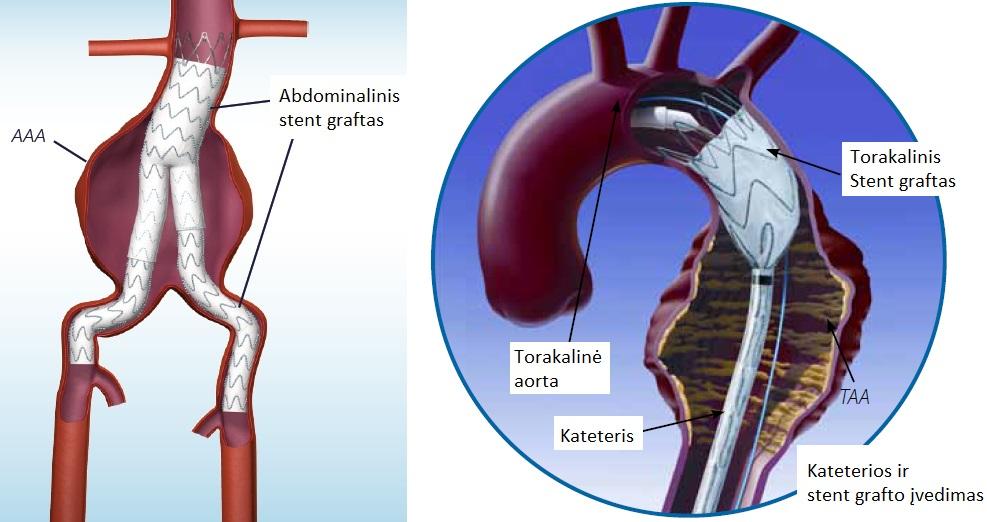 ką daryti hipertenzijos priepuolių atveju