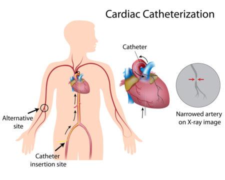 receptas liaudies vaisto nuo hipertenzijos pasaulio sveikatos organizacijos hipertenzija