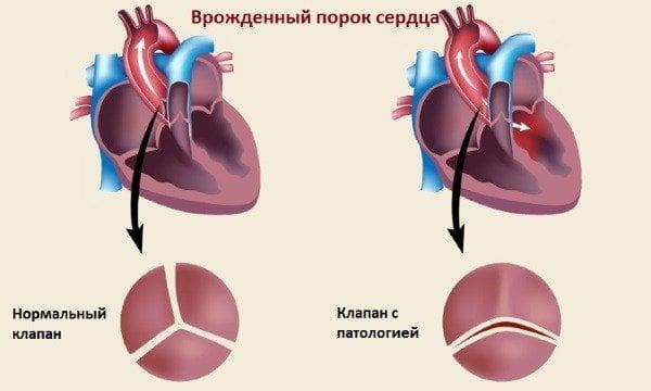 aspektas sveikatos širdies murmėjimas)