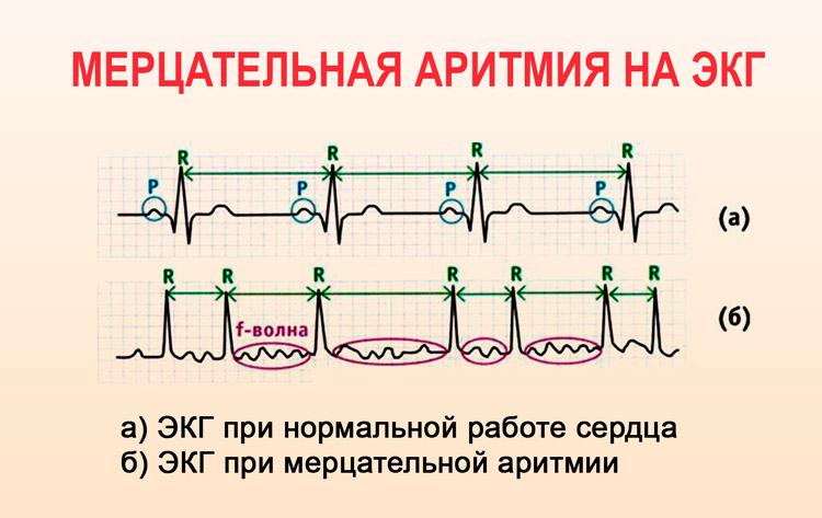 hipertenzija ir tachikardija liaudies gynimo)