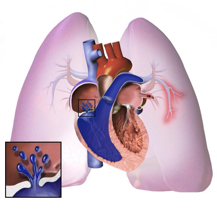 plaučių hipertenzija hipertenzija)