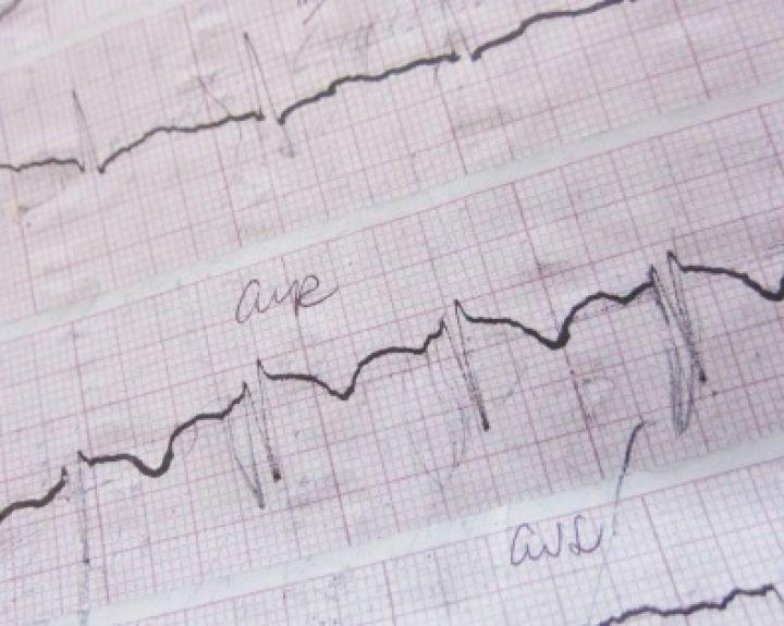 hipertenzija ir aritmija alternatyvus gydymas)