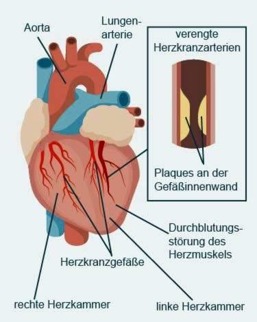 kuo krūtinės angina skiriasi nuo hipertenzijos)