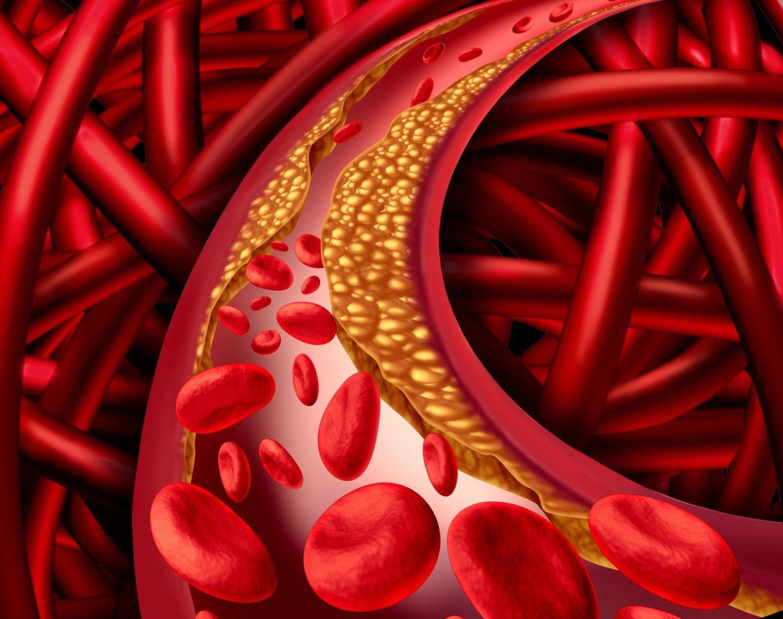 hipertenzija ir didelis cholesterolio kiekis)