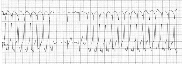 atropinas nuo hipertenzijos)