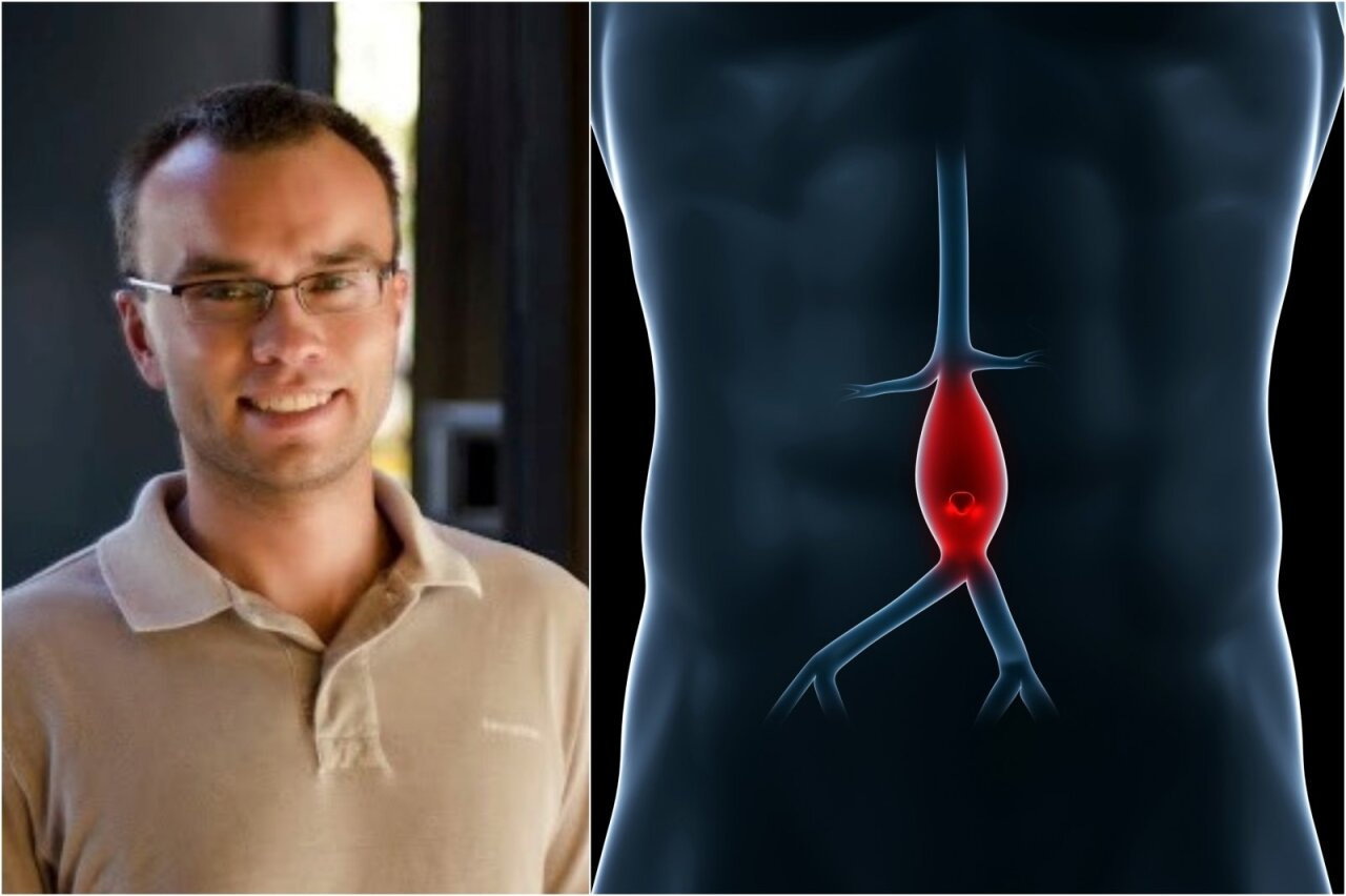 aortos aneurizma ir hipertenzija