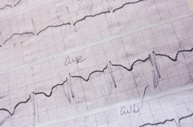 Gyvenimas po infarkto