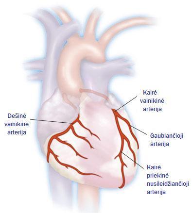 koronarinė širdies liga ir dantų sveikata