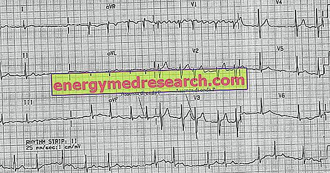 buvo gydoma nuo hipertenzijos tiesioginis vaizdo įrašas apie hipertenziją