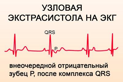 jei širdies kolitas su hipertenzija hipertenzijos tipai ir priežastys