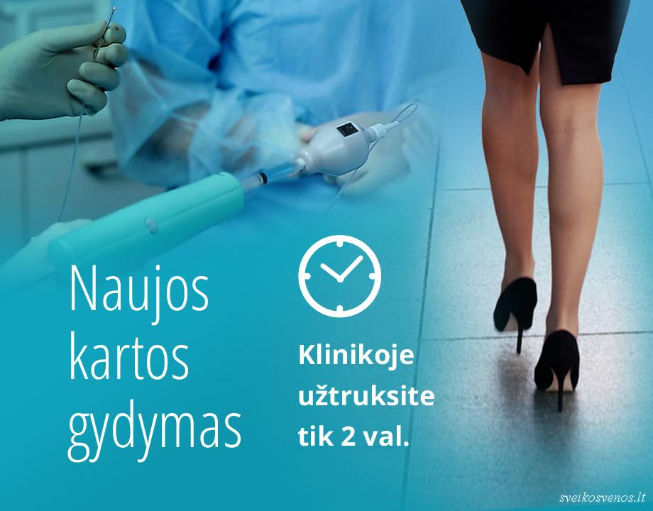 hipertenzija venų varikozė, kaip gydyti)