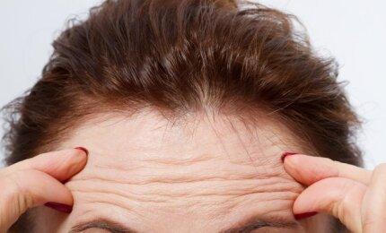 hipertenzija ir plaukai