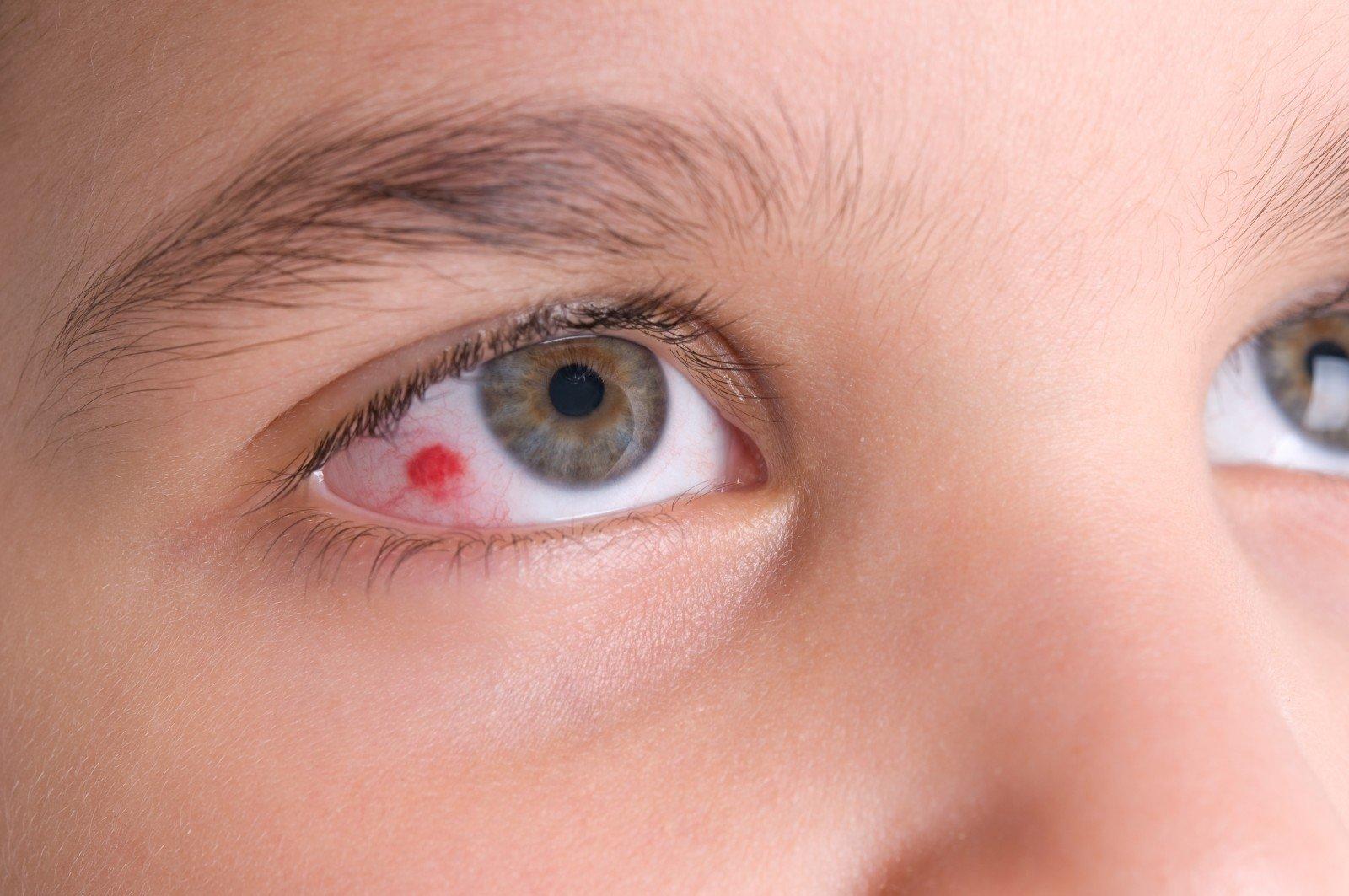 sprogo kraujagyslė akies hipertenzijoje