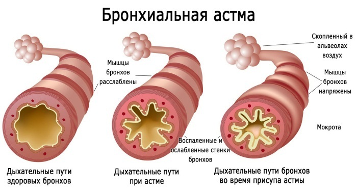 druskos urvo hipertenzija)
