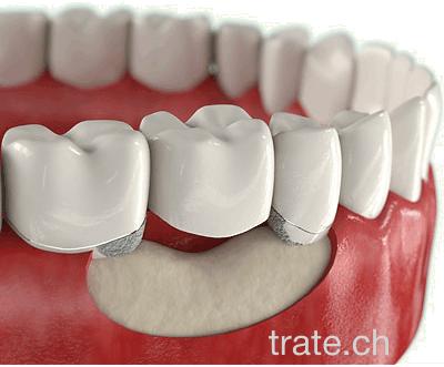 Testas: sužinokite, ar jums reikalingi dantų implantai