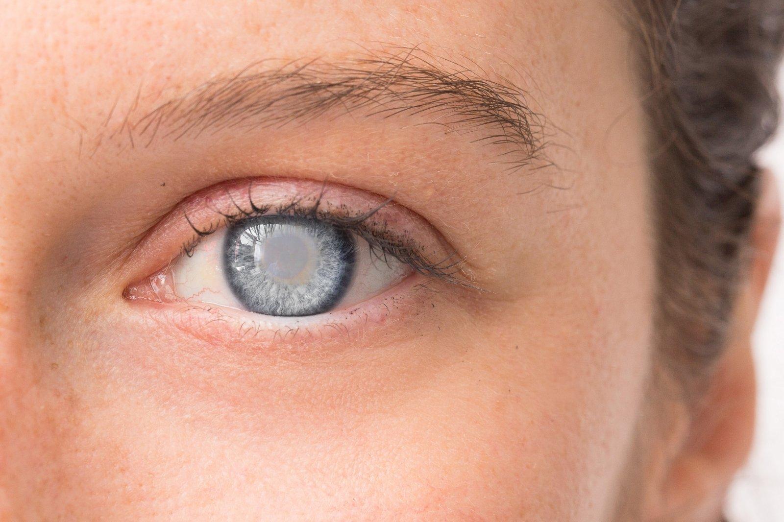 Raudona dėmelė akyje – nebūtinai nieko tokio