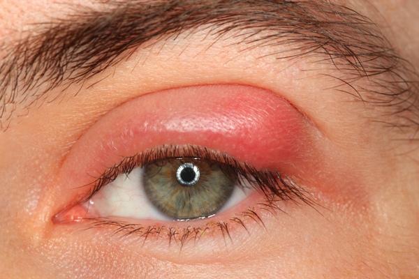 Paburkusių akių vokų priežastys ir gydymo būdai