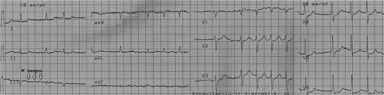 hipertenzija 1 ir 2 laipsniai pagal mikrobiologiją 10