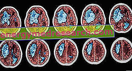 hipertenzija galvos svaigimas pykinimas)