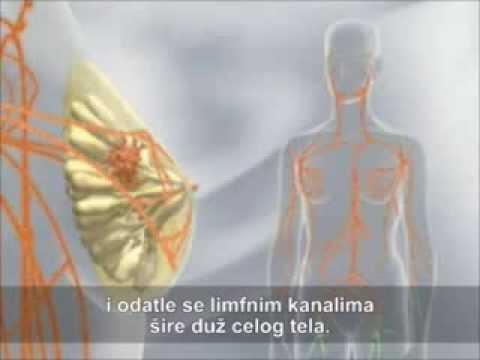 hipertenzija menopauzėje)