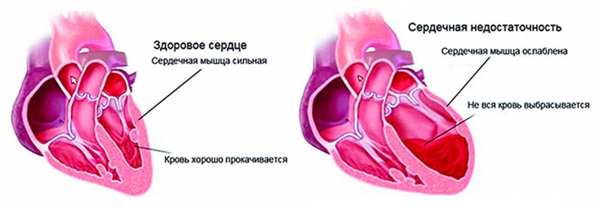 hipertenzija vaistas indap