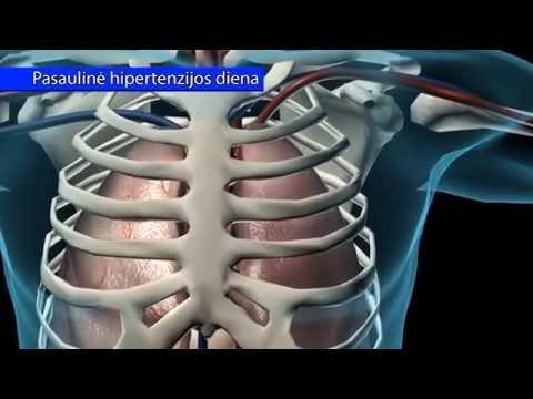 hipertenzijos animacija yra paveldima hipertenzija