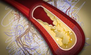 hipertenzijos gydymas statinais)
