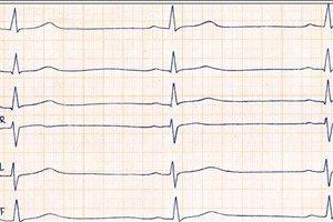 hipertenzijos su bradikardija priežastys)
