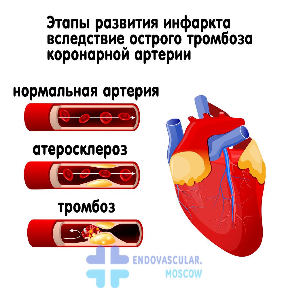 ICB kodas 10 hipertenzija 2 laipsniai